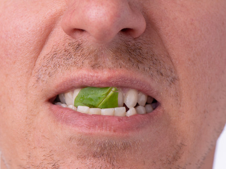 Leaders, Do Your Team Members Have A Piece of Spinach Wedged Between Their Teeth