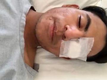 Joven Oaxaqueño apunto de perder la vista por ataque homofobo de Taxista