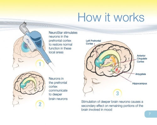 How Neurostar TMS therapy works to treat depression without medication