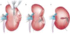 urologie dijon, urologue dijon, docteur toussaint, docteur turpin, docteur ferry, docteur toussaint dijon, docteur turpin dijon, docteur ferry dijon, toussaint urologie, ferry urologie, turpin urologie, urologue toussaint, urologue turpin, urologue Ferry