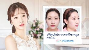 รีวิว ปรับรูปหน้า+ขากกรรไกร+จมูก ที่ Gyalumhan Plastic Surgery (กะรึมฮัน)