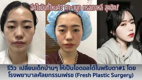 รีวิว เปลี่ยนเด็กบ้านๆ ให้เป็นไอดอลได้ในพริบตา#1 โดย โรงพยาบาลศัลยกรรมเฟรช (Fresh Plastic Surgery)