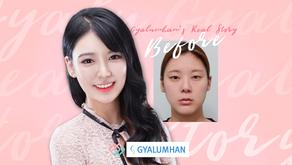 เปลี่ยนเป็นสาวหวาน ด้วยการปรับโครงหน้า 3 จุด