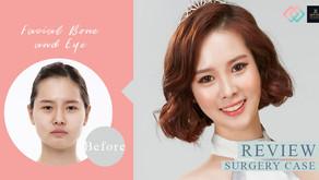 ผ่าตัดโครงหน้า เปลี่ยนสาวหน้าดุให้สวยหวาน พัคซูจิน