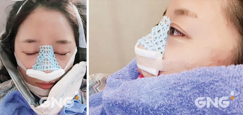 리얼스토리 사진, 지앤지병원 후기 - 지앤지병원