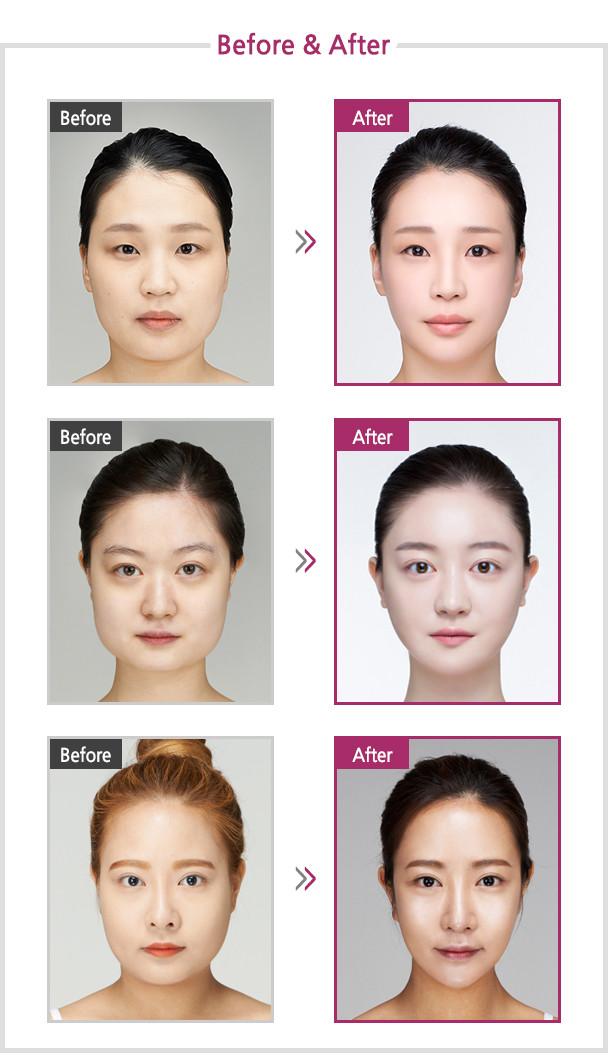 ศัลยกรรม ใบหน้ากว้าง