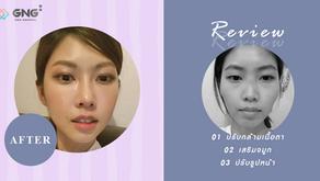 รีวิวผ่าตัดโครงหน้า เสริมจมูก และปรับกล้ามเนื้อตา คุณพัคฮเยวอน