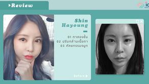 รีวิวศัลยกรรมจมูก ตาสองชั้น ของคุณฮายอง