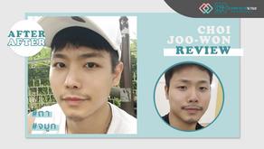 รีวิวศัลยกรรมตา และจมูก ให้รับกับใบหน้า คุณชเวจูวอน