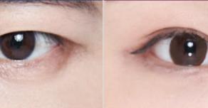 ประเภทศัลยกรรมตาสำหรับผู้ชาย