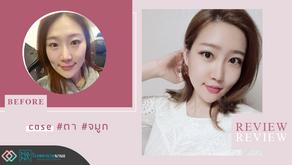 รีวิวศัลยกรรมตา และศัลยกรรมจมูก คุณลียองฮยอน