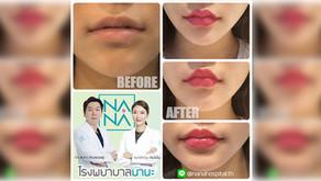 [ฟิลเลอร์ริมฝีปาก] รีวิวศัลยกรรม ปรับทรงริมฝีปากให้อวบอิ่ม สวยอย่างมีเอกลักษณ์ได้