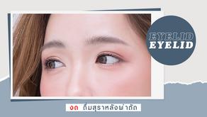 งดสุราหลังศัลยกรรมตา สามารถดื่มได้อีกครั้งเมื่อไหร่?