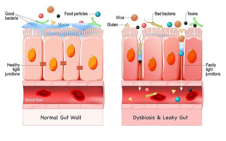 Dysbiosis & Leaky Gut.jpg