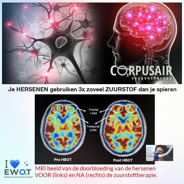 preventie dementie en zuurstoftherapie EWOT