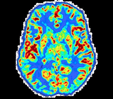 De doorbloeding van de hersenen verbetert duidelijk na de zuurstoftherapie, zie voor meer informatie Corpusair.nl.