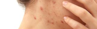 tratamiento acné