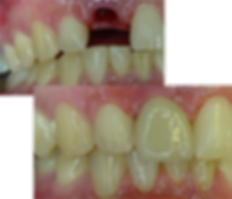 front tooth dental implant before
