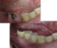 Dental implant back teeth