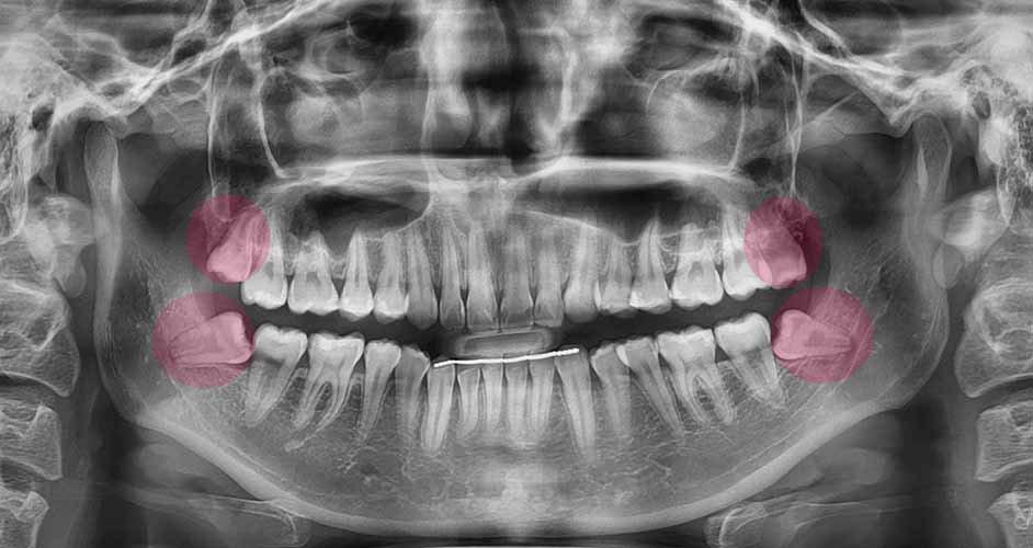 Wisdom teeth 智齿 opg