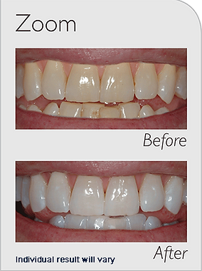Zoom tooth teeth whitening