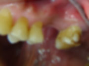 partial denture dental