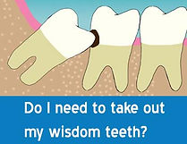 wisdom_teeth_removal