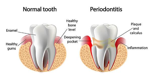 healthy periodontitis
