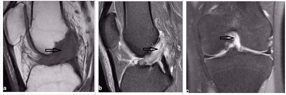 ACL MRI.png