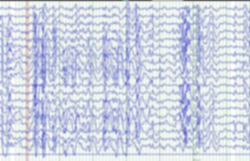 epilepsi tedavi neurofeedback psikiyatri