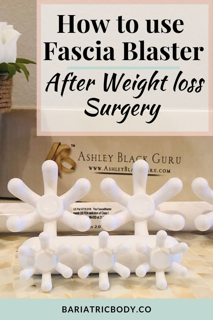 Are you wanting to use the Fascia Blaster after Bariatric Weight loss Surgery? Do you want to use the Fascia Blaster for your skin after your procedure? I use many Fascia Blasters and have since 6 months after surgery. I did not use them on my Stomach for a year. I wanted to see results for pain, dents, dimples and saggy skin. My results are… #fashiablaster #gastricsleeve #vsg #skin #bariatrics #selfcare