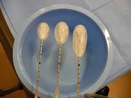 Kriyoablasyon çalışma prensibi; iğne ile kansere ulaşıldıktan sonra buz topu oluşumu ve hücre ölümü
