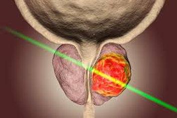 Prostat MR Füzyon Biyopsi
