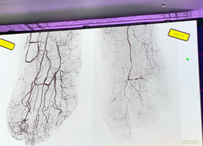 Diyabetik hastalarda Ayak damar anjioplasti öncesi sonrası akımda artış