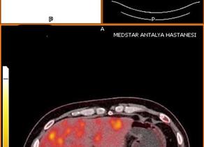 Radyoembolizasyon ile karaciğerde kolon kanserinin metastaz büyümesinin önüne geçmek
