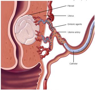 Rahim myomlarını besleyen damarları tıkayarak tedavi etmek mümkündür
