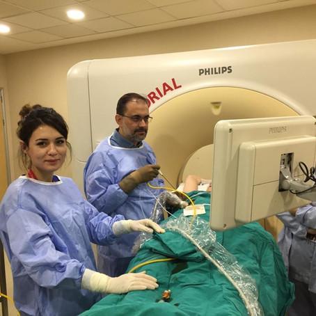 Mikrodalda veya kriyoablasyon akciğer kanseri tedavisinde oldukça başarılıdır