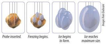Meme tümörü kriyoablasyon dondurma tedavi prensibi