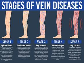 Varis venöz yetmezlik için damar içinden gönderilen lazer fiberi hastalıklı damarı Tedavi eder