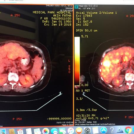 Karaciğer kitleleri 3 seans TAKE ile kayboldu