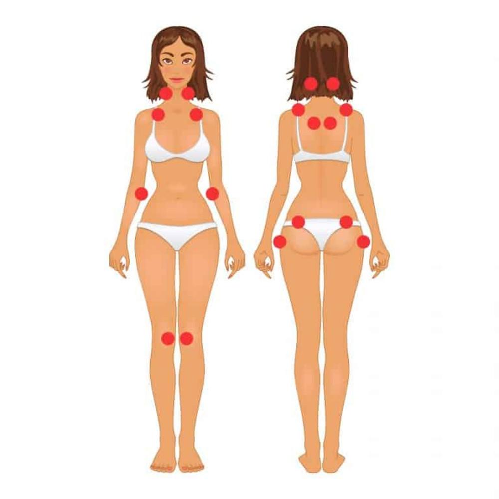 Imagem indicando pontos de dor mais frequentes na fibromialgia
