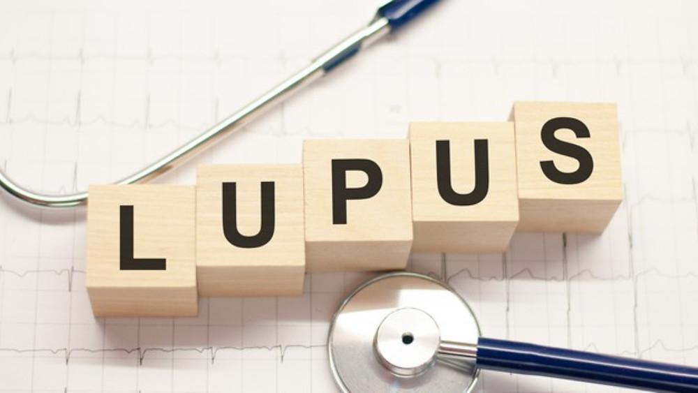 Peças quadradas formando a palavra Lupus