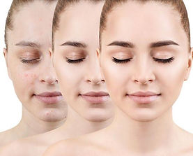 Neem Tablets to clear acne