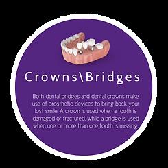 Crowns bridges.png