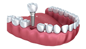 Single-Implant-Crown%20tiny_edited.png