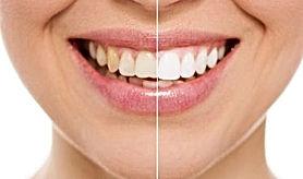 Teeth Whiting Procedure Dental Tourism C