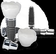 single dental implant costa rica