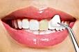 porcelain-veneers-by-dentist-in-ann-arbo