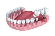 Implant-dentist-costa%20rica%20tiny_edit