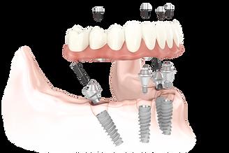 all on 4 dental implant